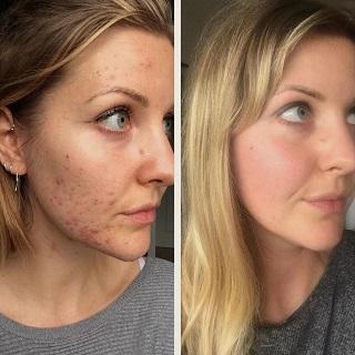Acne & Scar Removal