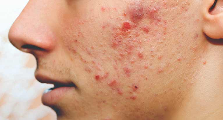 Acne and pimples