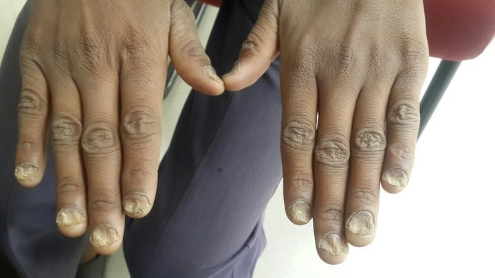 Manage Skin and nail condition